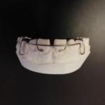 snimatelna rovnatka Rovnatka, braces, ортодонтический аппарат